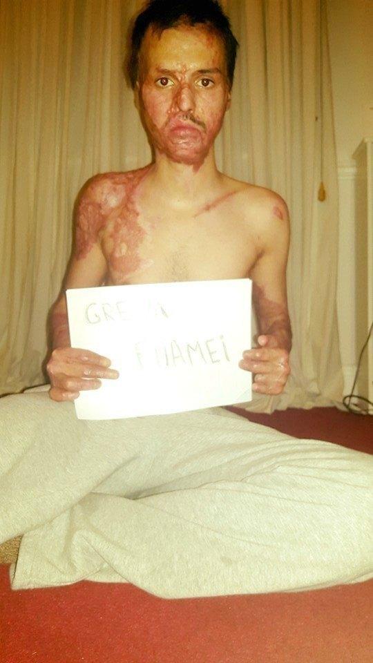 Alexandru Olteanu a intrat în greva foamei de pe 17 mai
