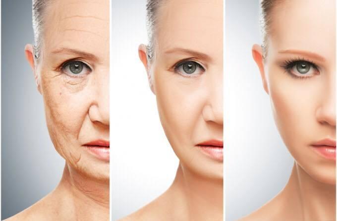 Cum să scapi de ridurile de la ochi în mod natural